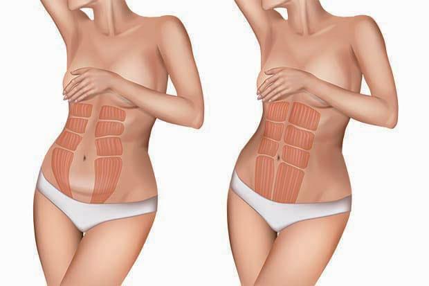 Diastasi addominale: la ginnastica ipopressiva può aiutare?